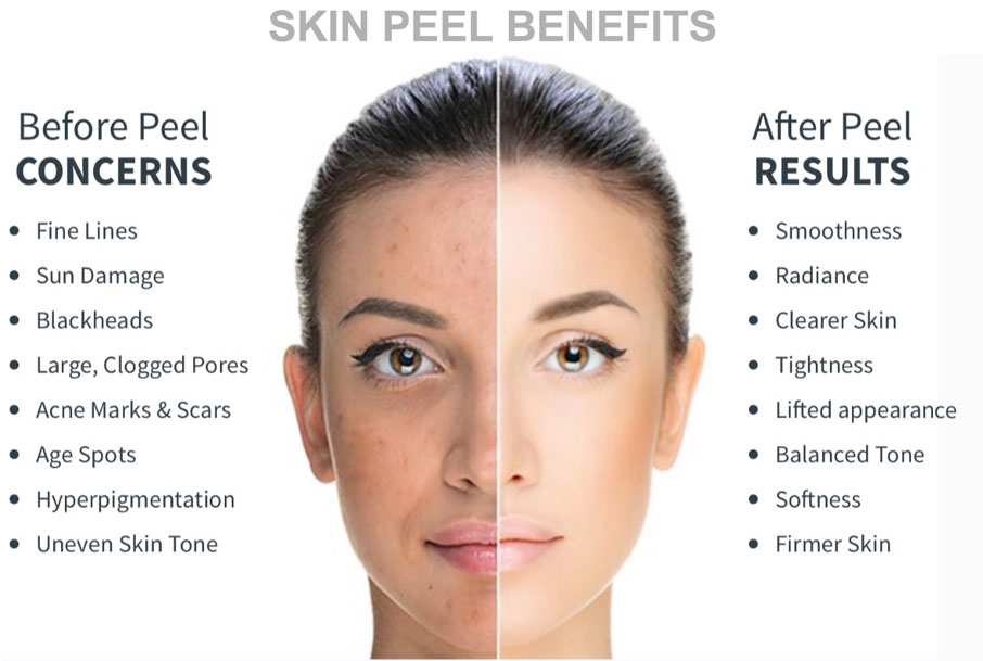 Spa honolulu hydrafacial day spa hawaii honolulu spa everything you wanted to know about chemical peels solutioingenieria Image collections